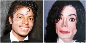 Michael Jackson sebelum dan sesudah aperasi plastik